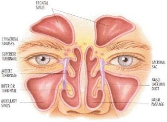 la sinusite est souvent provoqu e par un d faut d a ration du sinus qui s enflamme le sinus ne. Black Bedroom Furniture Sets. Home Design Ideas